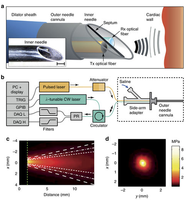 New paper: Through-needle all-optical ultrasound imaging in vivo: a preclinical swine study published in Nature: Light Science & Applications.